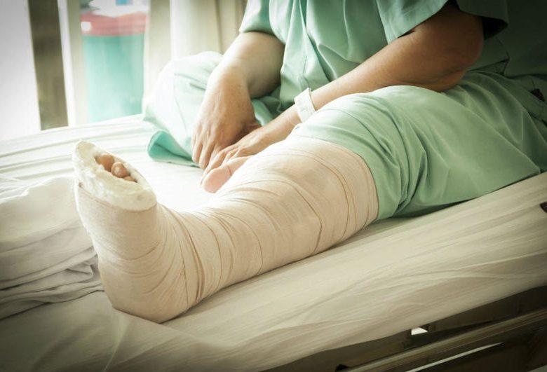До чого сниться зламана нога або її перелом: тлумачення сну по популярним сонникам